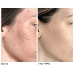 Alpha Beta® Universal Daily Peel - Dr. Dennis Gross Skincare   Sephora (US)