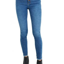 Women's Madewell 10-Inch High-Rise Skinny Jeans: Button-Front Edition, Size 24 - Blue   Nordstrom